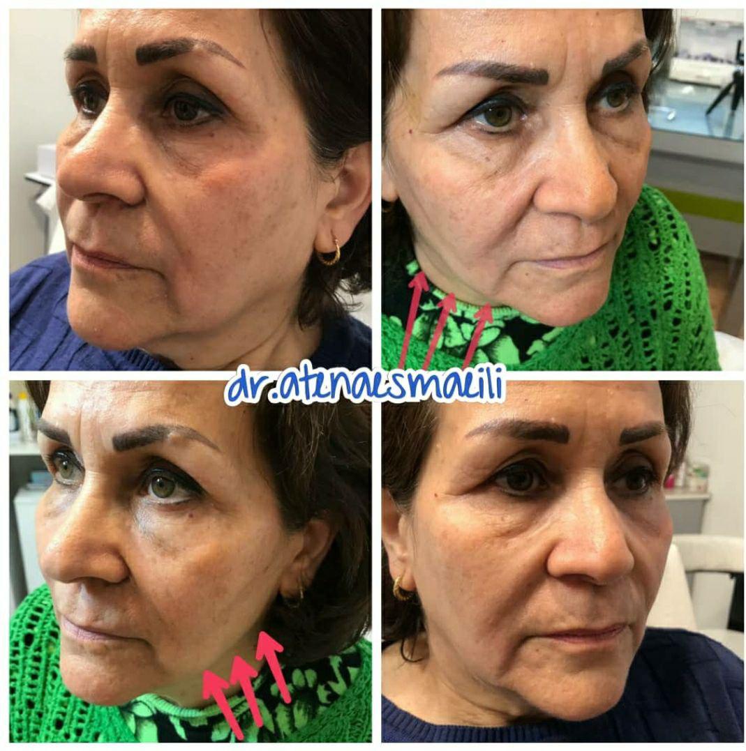 کلینیک پوست و مو افرا 4