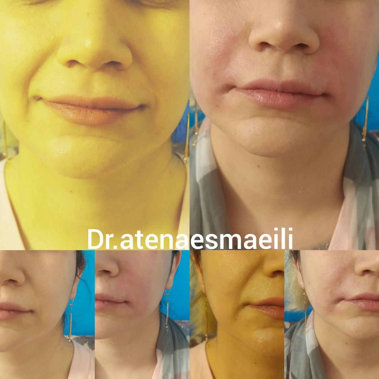 کلینیک پوست و مو افرا 5