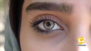 فروش لنز رنگی و زیبایی شرکت دیدآور 8